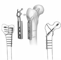 Orthopedic Implants Manufacturers India